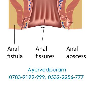 fistula best treatment in india